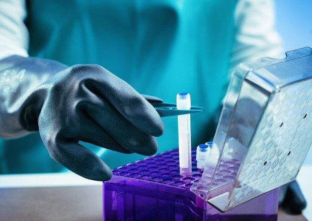 فراوری 6 محصول سلول بنیادین در کشور